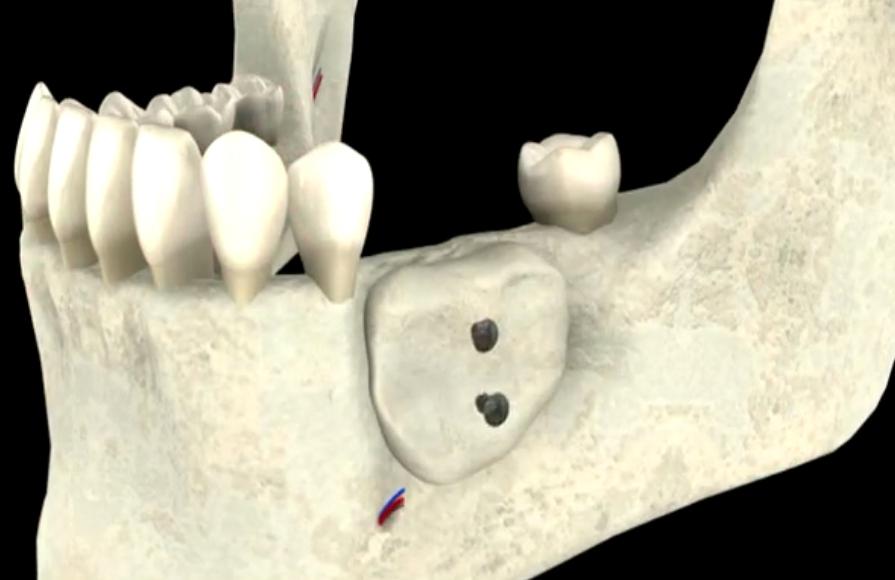 Mise en place de la greffe osseuse