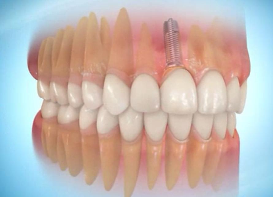 Prothèse dentaire terminée